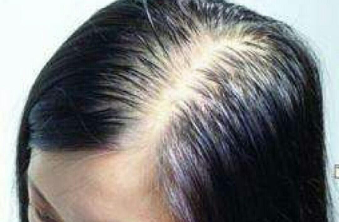 如何解决掉头发的方法