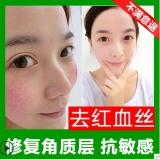 滋润修护霜 增厚角质修护敏感肌肤修护去除红血丝正品修复精华霜